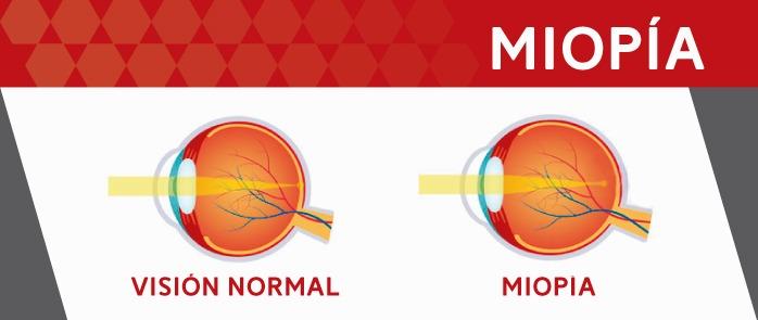 Corrección de la miopía: ojo normal y ojo con miopía