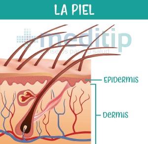Definición de herida: capas de la piel