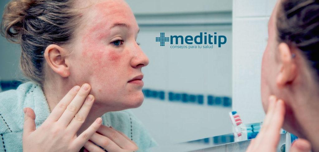 Maquillaje y el cuidado de la piel: dermatitis de contacto