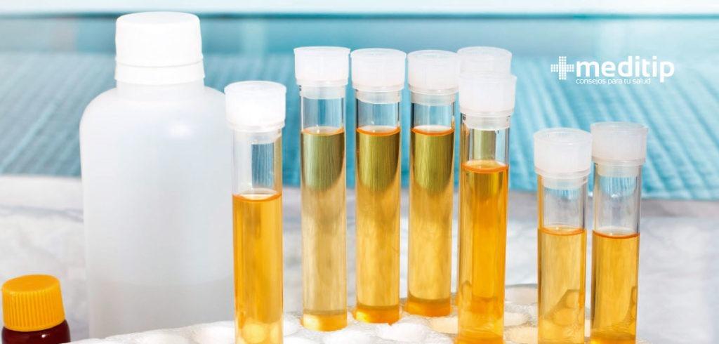 Causas de la ictericia: análisis de orina