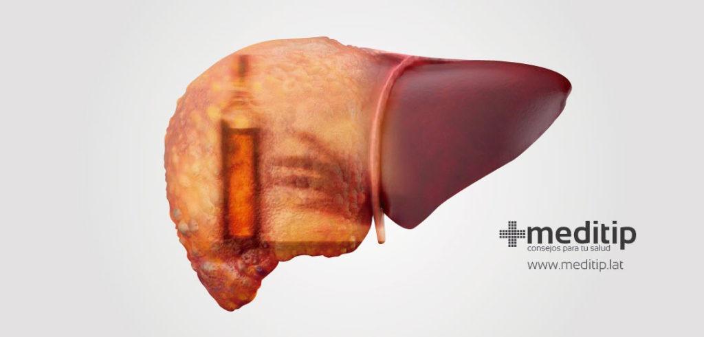 Función del hígado: hepatitis alcohólica