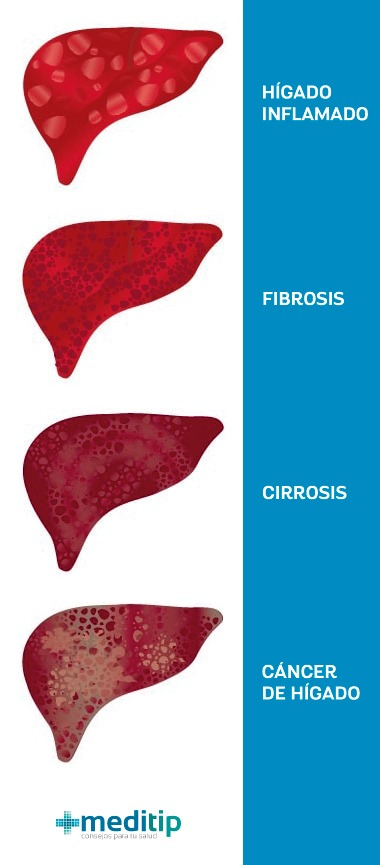 Función del hígado: enfermedad hepática