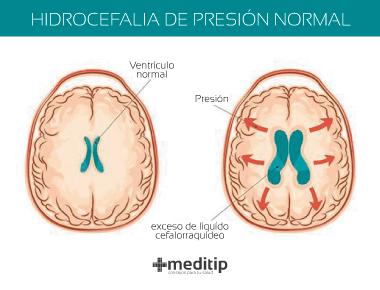 Hidrocefalia de presión normal: exceso de líquido cefalorraquídeo