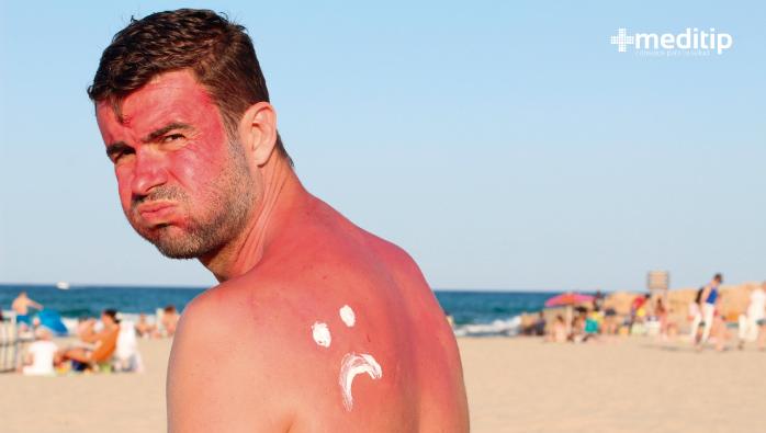 Mitos sobre los aceites esenciales: exposición al sol