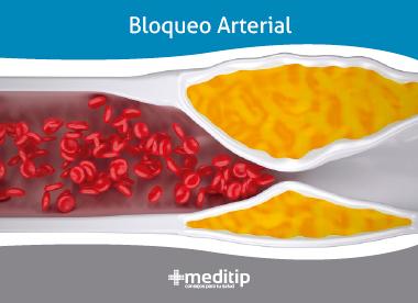 Causas de la aterosclerosis: acumulación de placa