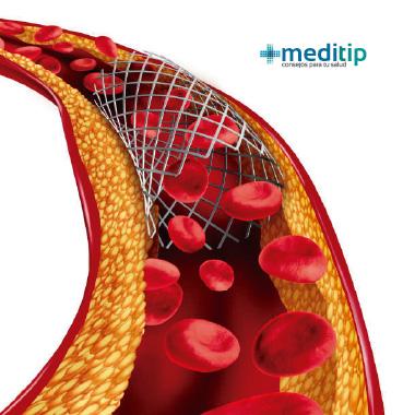 Causas de la aterosclerosis: cirugía de colocación de stent