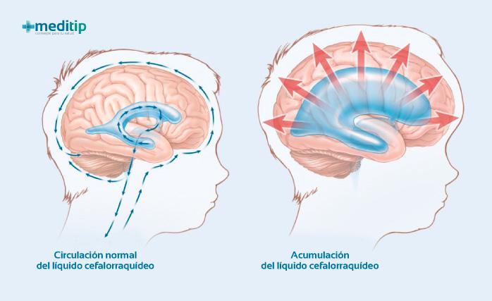 Causas de la hidrocefalia: acumulación de líquido en el cerebro