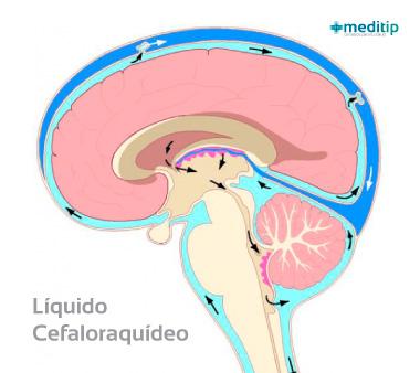 Causas de la hidrocefalia: líquido cefalorraquídeo