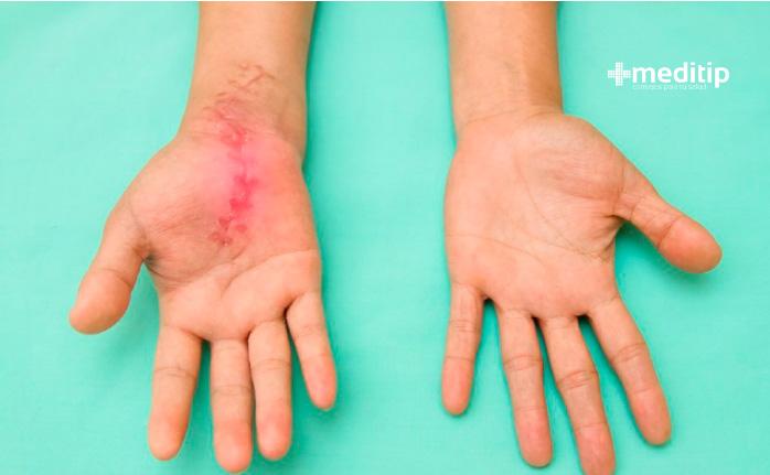 Sustancias inflamatorias: proceso inflamatorio de herida en la mano