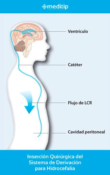 Causas de la hidrocefalia: sistema de derivación ventriculoperitoneal, válvula de hidrocefalia