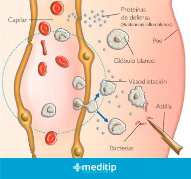 Sustancias inflamatorias: vasodilatación