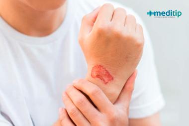 Qué es una infección: infección en una herida
