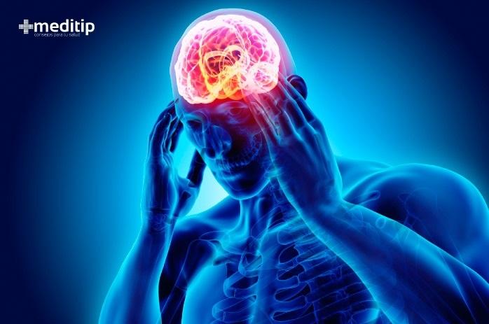 Causas del dolor de cabeza: migraña